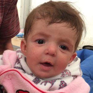 """Marwa*, 5 months, at Hamam al-Alil IDP camp in Iraq. Marwa*s mother Ashna* and her father Salar* fled fighting in Mosul with their six young children, including Marwa*. Marwa* said: """"The journey was hard and me and the children were very scared. But all I could think about was how we needed to get to safety and how I needed to keep my children safe – so that drove me and kept me going even though the children were very hungry and they were crying a lot. My older children were able to walk but we had to carry the younger ones in our arms – I carried Marwa*, while my husband carried my son and my uncle my other daughter. Marwa* is sick. Ten days ago she got a high fever and bad diarrhea. We were given medicine but it is not working and then, about two days ago, she got a bad cough that is getting worse. Luckily she sleeps at night, but her diarrhea never stops. It is very difficult to deal with this here. There is no privacy at all. Neither me, nor the baby, have had a shower since we arrived 20 days ago and I have five other young children to look after. We all have to sleep on the floor in the tent with many other families. It is noisy and dirty."""""""
